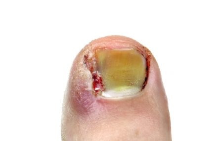 Do You Suffer From an Ingrown Toenail?