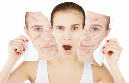 Acne Cures: Is there a Natural Acne Cure that Works?