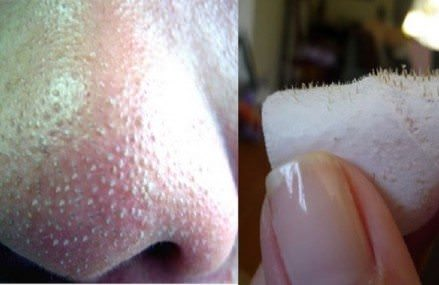 The Best Home Remedies To Get Rid of Blackheads on Nose