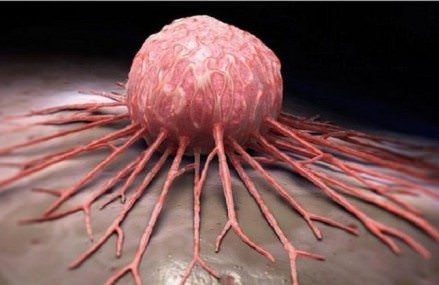 Can Any Type of Cancer Can be Cured in Just 2-6 Weeks?