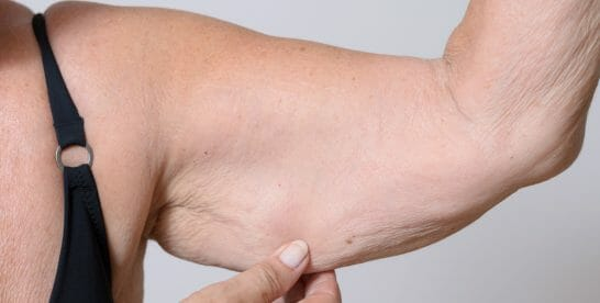 Tips to Trim Arm Fat at Home