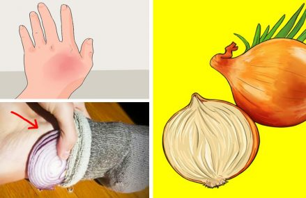 5 Home Remedies An Onion Can Solve