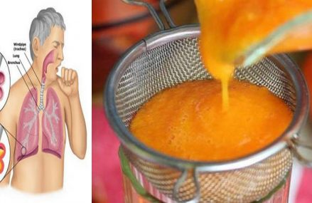 Simple Homemade Syrup For Cough, Flu & Removes Phlegm From Lungs