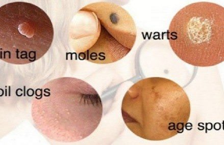 Natural Ways to Treat Skin Issues