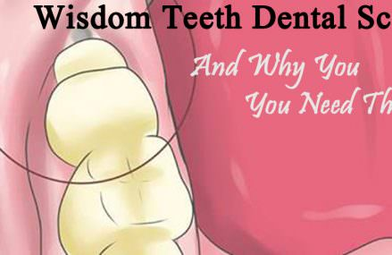 Wisdom Teeth Dental Scam & Why You Need Your Wisdom Teeth