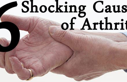 The Most Common Causes of Arthritis