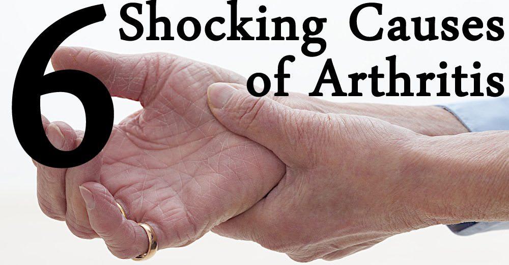 cause of arthritis - DriverLayer Search Engine  cause of arthri...