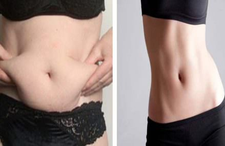 Worth Trying: Only Two Cups A Day For 7 Days For A Completely Flat Stomach!