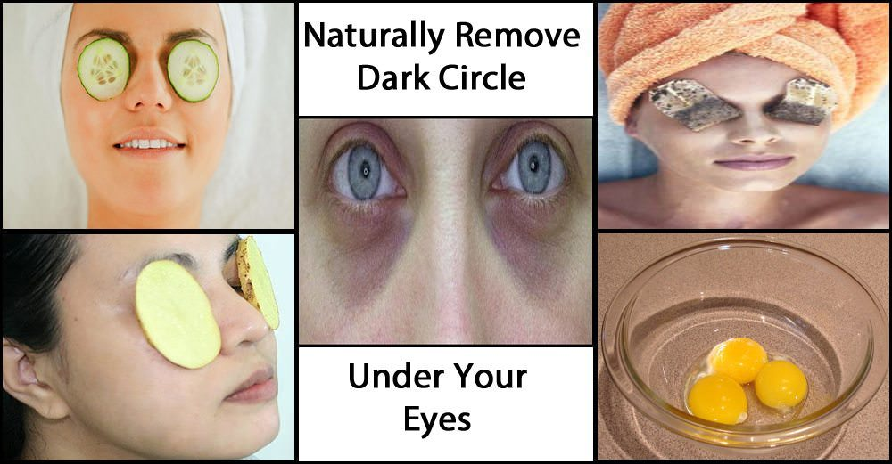 Get Rid Of The Black Circles Under Your Eyes And Look Like ...