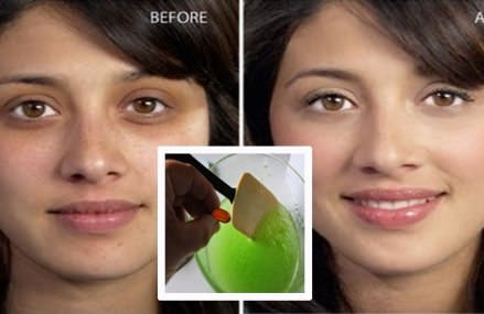 Apply this serum and dark circles will disappear in just few days(100% natural remedy)