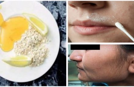 In just 15 minutes, this 3 ingredient mix will remove facial hair!