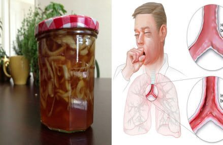 Naturally Treat and Eliminate Bronchitis with These Remedies