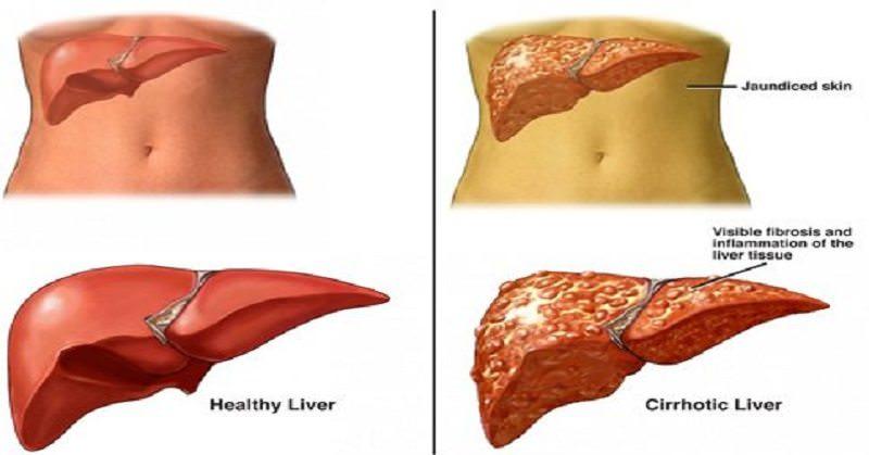 How To Treat Hemochromatosis Naturally
