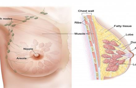 14 Signs of Breast Cancer You Cannot Ignore