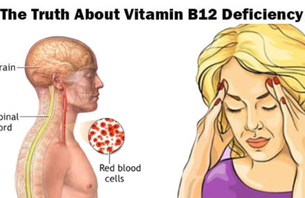 The Truth About Vitamin B12 Deficiency