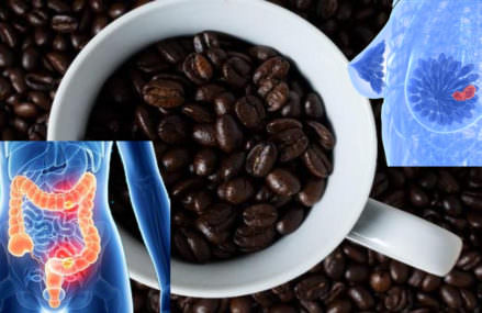 Help reduce your risk of 13 types of cancer by drinking this amount of coffee every day