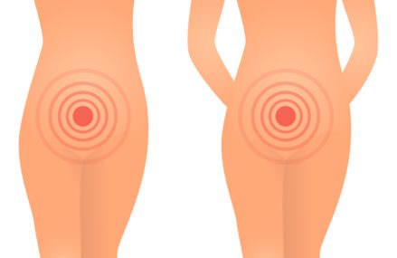 Pregnancy and Yeast Infection