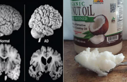 One Man Had Coconut Oil 2 Times Daily For 2 Months. Then His Brain Changed!