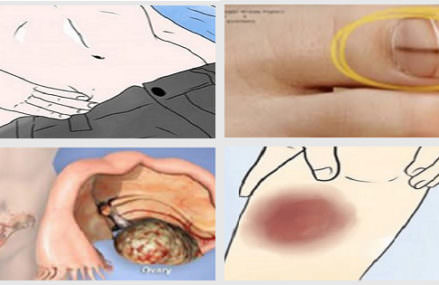 20 Signs Of Cancer Ignored By Almost Everyone!