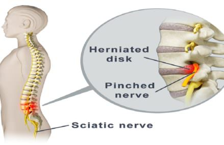 Try These 2 Highly Effective Solutions to Release the Pinched Nerve in the Lumbar Area and Eliminate the Unbearable Pain!