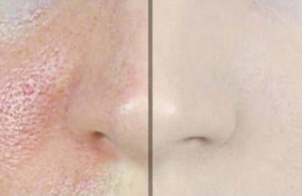 How to Reduce Large Pores With Only 1 Ingredient