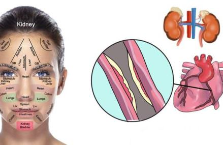 Your Face and Skin are Covered With Signs, Here?s How To Tell What?s Wrong With Your Kidneys, Hormones And Liver