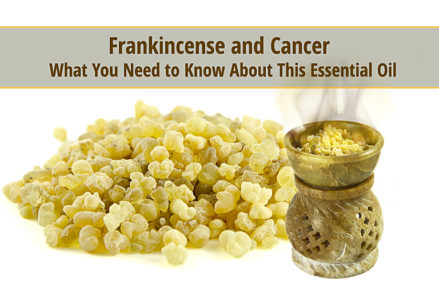 Frankincense Essential Oil ? The New Hope for Cancer Treatment and Prevention