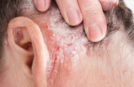 Cure Psoriasis Using a Common Kitchen Product