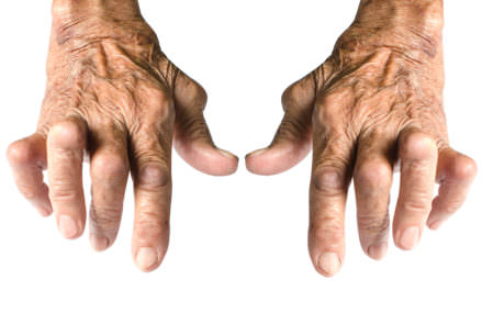 FOUR Supplements that could be a Natural CURE for Painful Symptoms of Arthritis