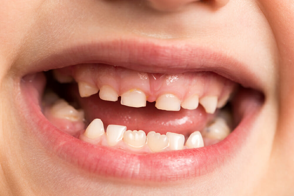 Why Little Teeth Are Such A Big Deal - Holistic Living Tips