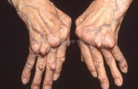 This Common Household Product Treats Autoimmune Disease