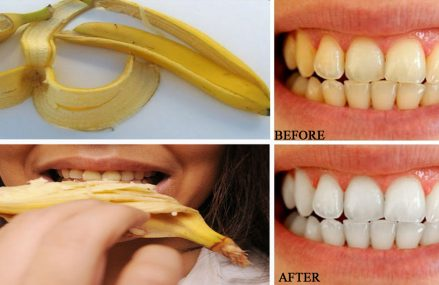 How To Naturally Whiten Your Teeth With A Banana Peel!